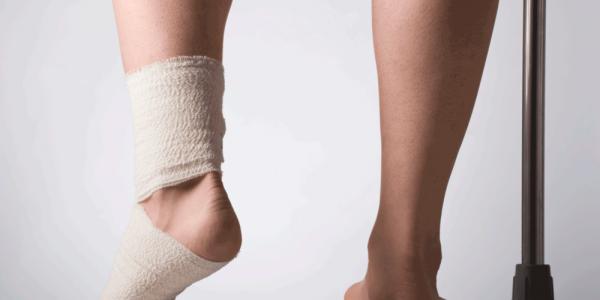 Неудачная шутка окончилась для лидчанина переломом ноги