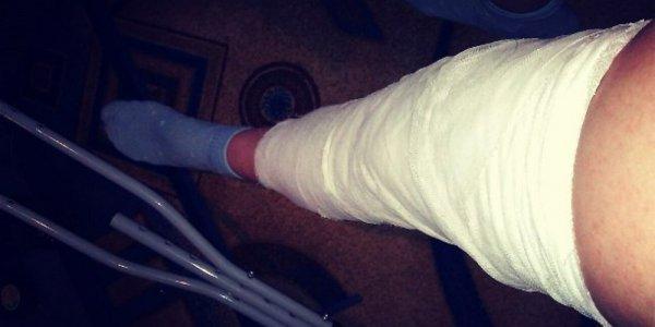 Cломал ногу на малолюдной дороге