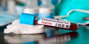В Лидском районе дальнобойщик сдал анализ на коронавирус, а после сбежал с больницы